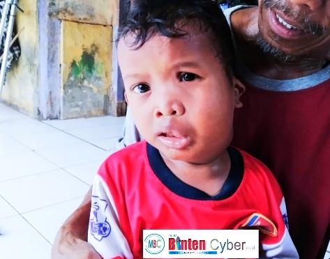 Ridho, Balita Malang Usia 4 Tahun Menunggu Uluran Tangan Pemkab Tangerang